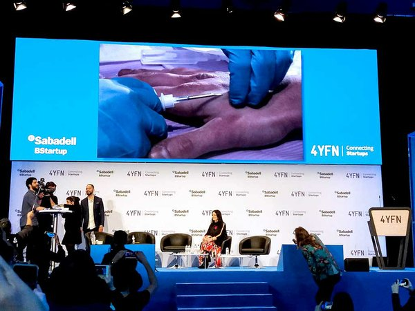 A-live-biohacking-event-to-implant-a-chip-in-a-volunteer's-hand-Day-1.jpg