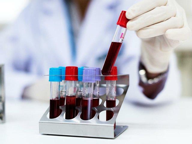doctor-checking-blood-samples.jpg