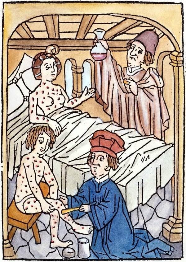 Medieval Syphilis 1497 Na Doctor Inspects The Urine Sample Of A Female Patient With Syphilis While His Colleague Applies A Salve To A Similarly-Infected Male Patient Woodcut 1497.jpg