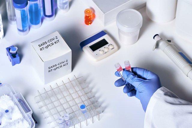 novel-coronavirus-2019-ncov-rt-pcr-diagnostics-kit.jpg