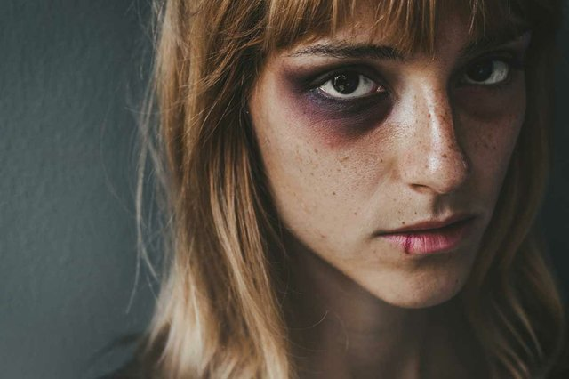 stop-violence-against-women-sad-beaten-up-woman-with-wounds-face-looking-with-deep-look.jpg