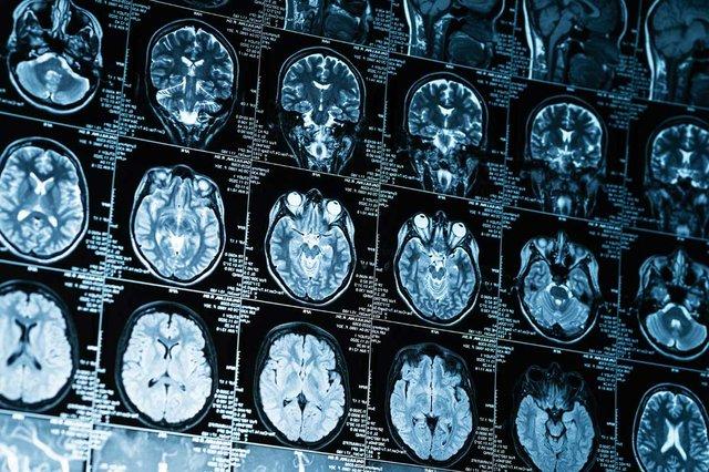 closeup-series-mri-images-brain.jpg
